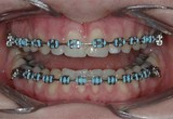 Metal brackets with color elastics
